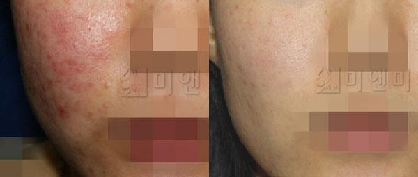 심한 여드름 흉터/색소/재생 치료